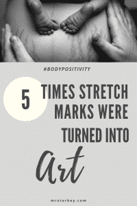 stretch mark arts