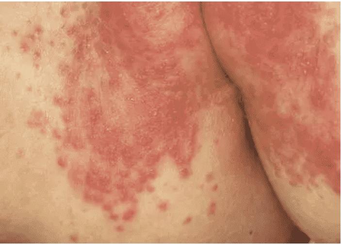 diaper rash yeast infection